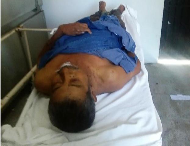 Muere en el hospital por cirrosis hepática