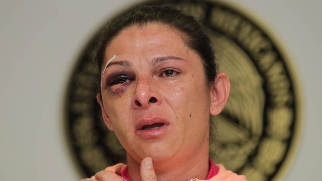 El presunto agresor de la medallista olímpica Ana Guevara va a prisión preventiva
