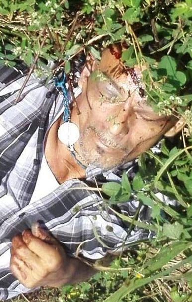 Localizan ejecutado con tiro de gracia entre Azueta y Loma Bonita