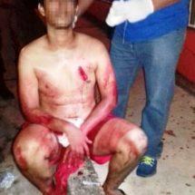Acuchillan a Tuxtepecano en Tres Valles durante asalto