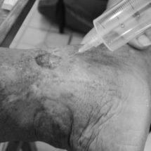 POR CUARTA OCASIÓN… Habrá  campaña de ozonoterapia  a bajo costo en el DIF Tuxtepec