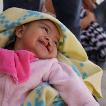 Cirujanos regalan nuevas sonrisas en Oaxaca