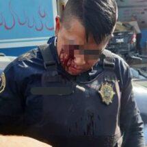 Supervisor de la SSC termina con balazo en el ojo al forcejear con policía